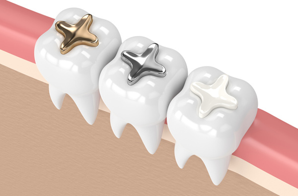 Rendering of teeth with three filling materials at Reich Dental Center – Roswell.