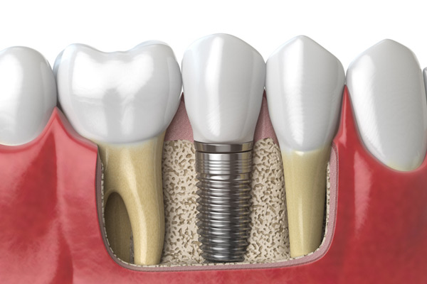 3D rendering of a dental implant next to healthy teeth